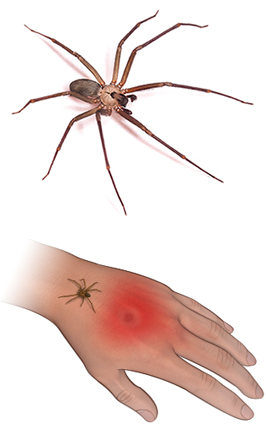 Brown Recluse spider and bite
